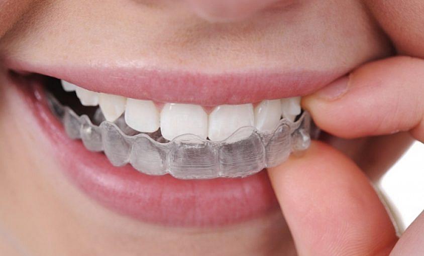 ból podczas leczenia ortodontycznego